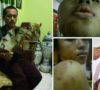 Kasus Mahasiswi Disekap, Ayah Korban Tunjukkan Bukti Foto Penyiksaan
